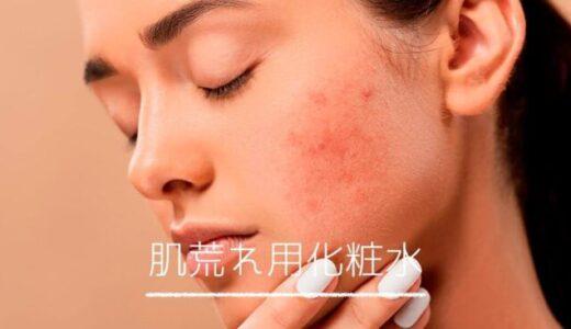 肌荒れにおすすめの化粧水8選!敏感肌や産後のスキンケアに。選び方も解説